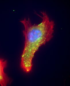 Epifluorescence image of extracellular vimentin (green), here seen with the protein actin (red) and DNA (blue), speeds up delivery of SARS2 to the cell. Anti-vimentin antibodies can block up to 80% of host cell invasion in the coronavirus. (Courtesy: Maxx Swoger and Alison Patteson)